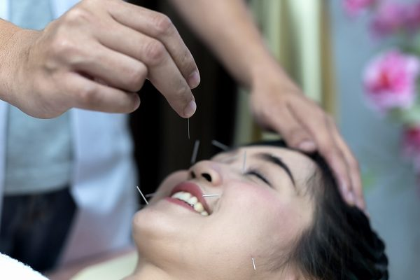 Acupuncture: Ways to Improve Health