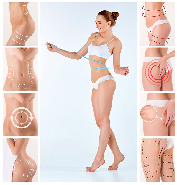 What You Can Do To Ensure The Success Of The Liposuction?